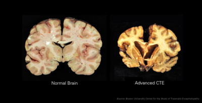 Chronic_Traumatic_Encephalopathy-CTE