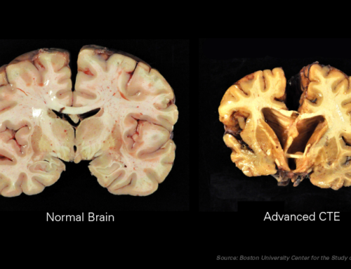 Science makes progress with live CTE diagnosis