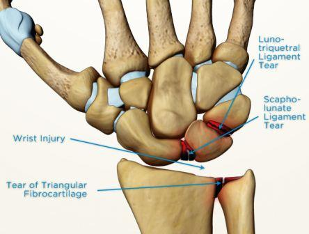 scapholunate ligament tear symptoms  treatment  surgery sportsmd Ligament Damage in Thumb Thumb Anatomy Diagram