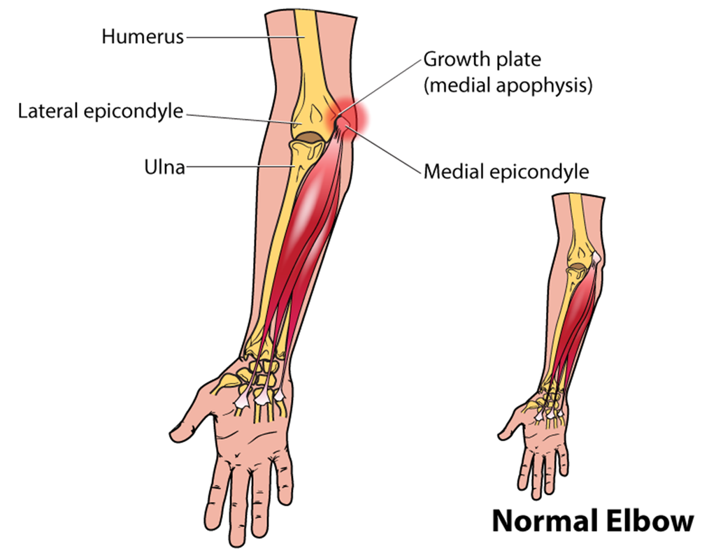 Little Leaguer S Elbow Symptoms Treatment Amp Recovery
