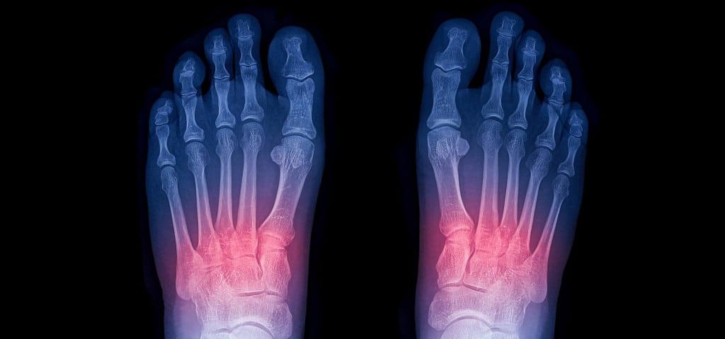 mid-foot sprain