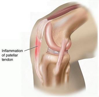 Patellar Tendonitis | Symptoms, treatment & recovery ...