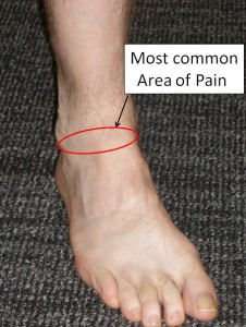 Anterior Ankle Impingement on acl pain location