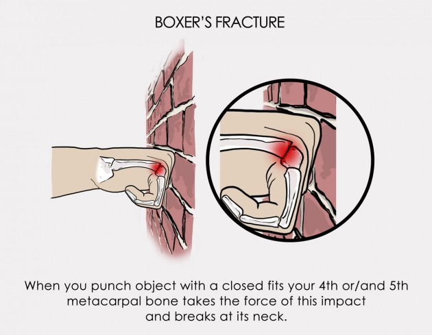 how to know if you broke your knuckle