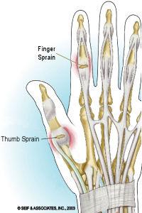 sprained finger