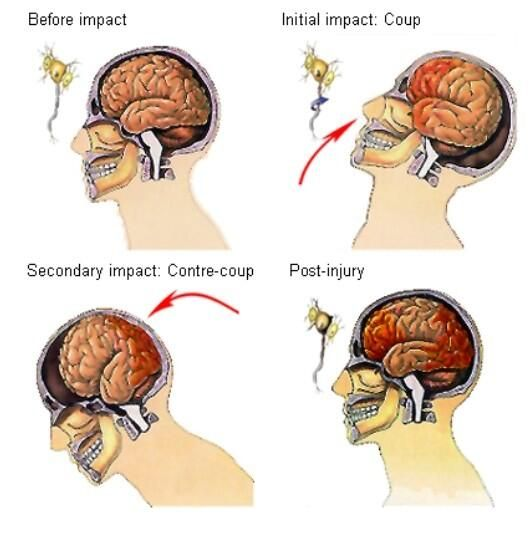Concussions Are Brain Injuries Sit Your >> Second Impact Syndrome Symptoms Treatment Recovery Stories