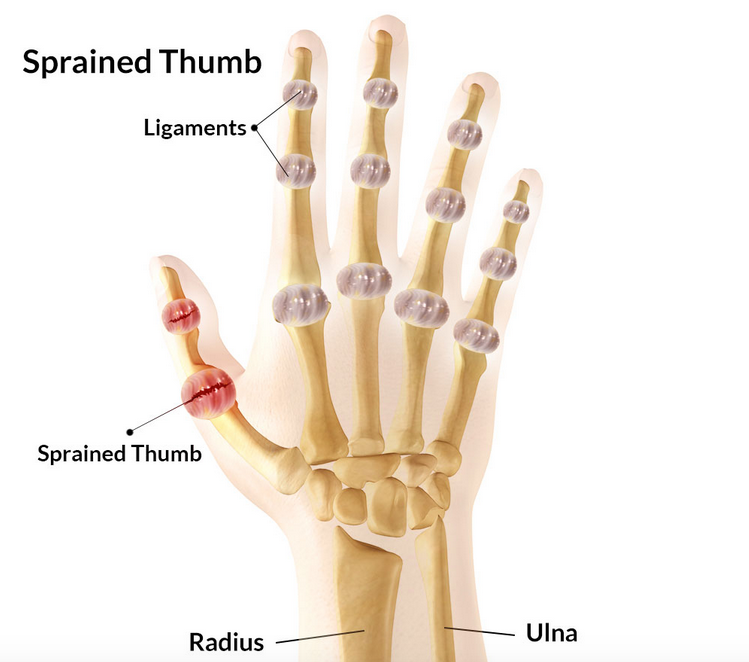 Sprained Thumb | Symptoms, treatment, rehabilitation & taping | SportsMD