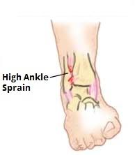 Best Shoes For Broken Ankle