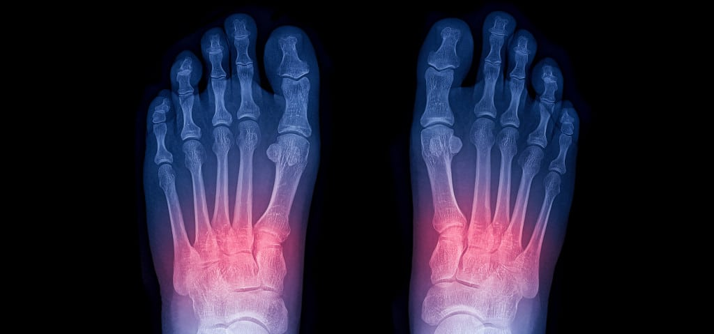 Midfoot Sprain | Diagnose, treatment and surgery options | SportsMD
