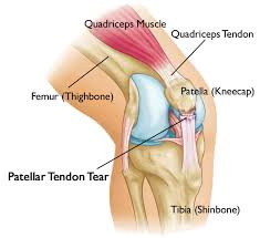 how to build muscle around knee cap