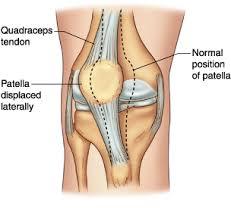b5f5996e4a Patellar Dislocation - Sports Injuries, treatment and performance ...