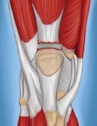 quadricep tendon rupture