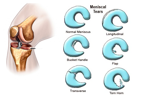 Meniscus Tear Symptoms Treatment Surgery Recovery Sportsmd