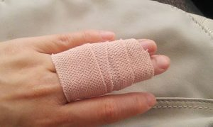 sprained finger buddy taping
