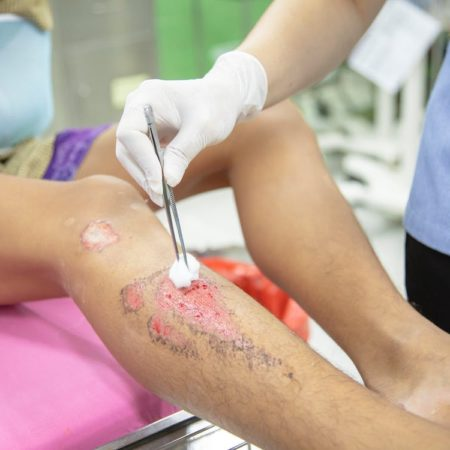 Leg Injury (Amornthep Srina)