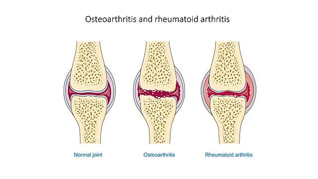 Osteoarthritis (wikimedia-Laboratoires Servier)