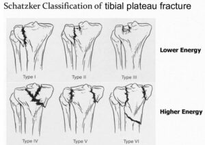 tibial plateau fracture surgery