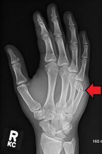 boxers fracture x-ray